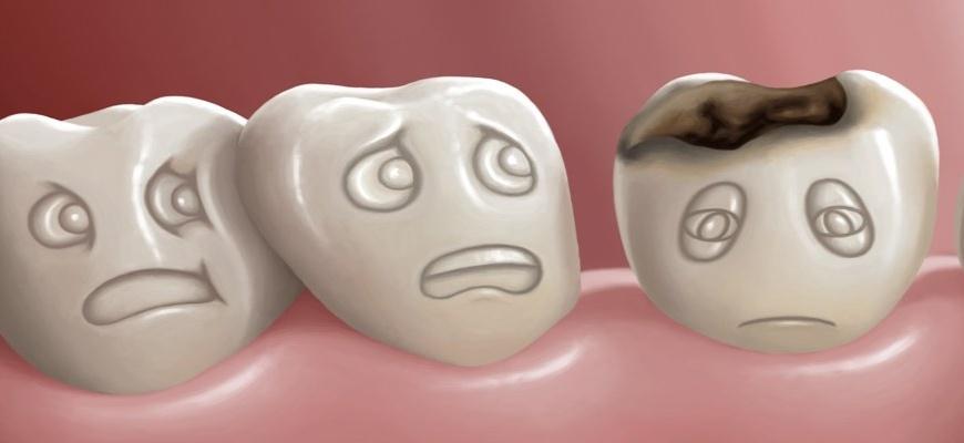علت پوسیدگی دندان ها چیست؟