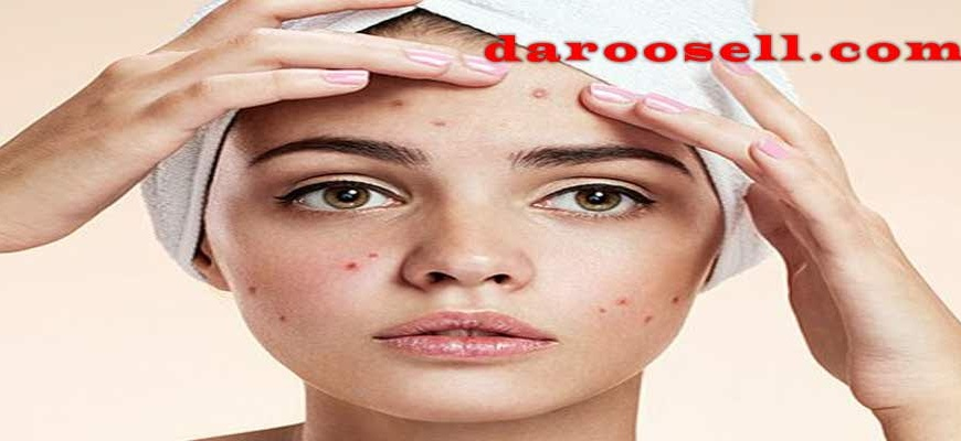 جوش صورت خود را هر چه سریعتر درمان کنید.