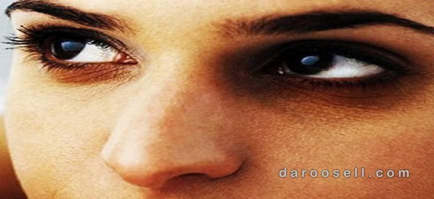 علت سیاهی زیر چشم هایتان چیست؟